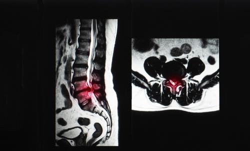 腰部脊柱管狭窄症.jpg